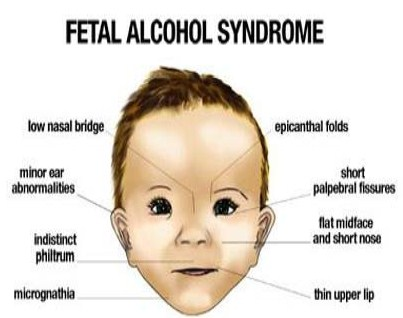 alcohol fetal syndrome thesis Moral panic is a term which derives itself from the work of stanley cohen whose famous thesis by the national organisation on fetal alcohol syndrome.